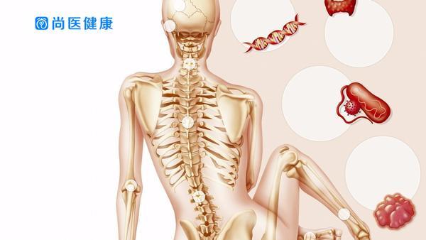 腰椎间盘突出最佳治疗方法是什么,腰椎间盘突出怎么保养治疗好