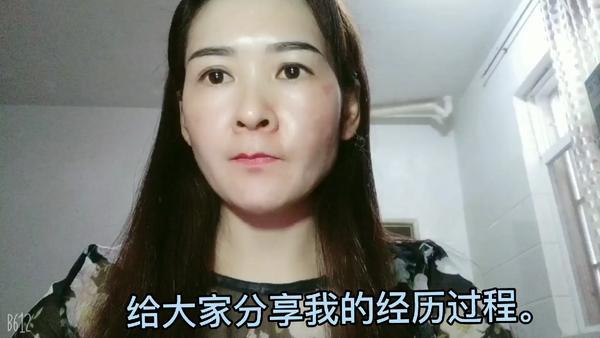 激光祛斑能洗脸吗 激光祛斑后如何保养