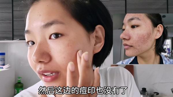 盐水洗脸可以祛痘吗,用盐洗脸能祛痘么,盐水洗脸能祛痘吗