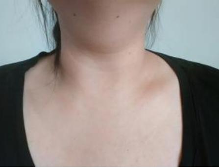 脖上因什么原因长肉疙瘩 脖子上长小肉粒的注意什么