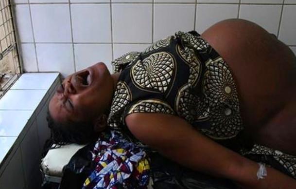 镜头下:非洲贫苦女人的心酸分娩历程