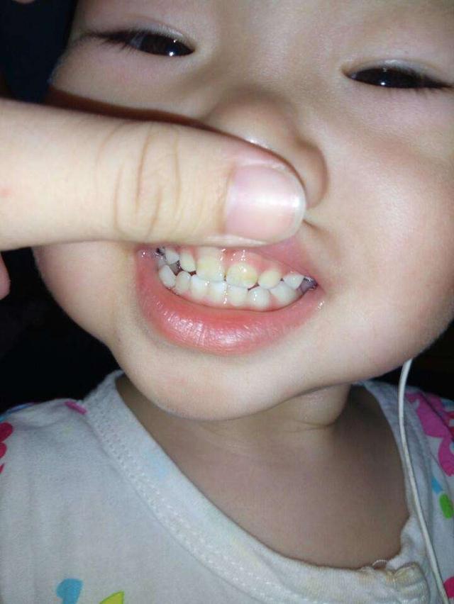 蛀牙宝宝卡通图片
