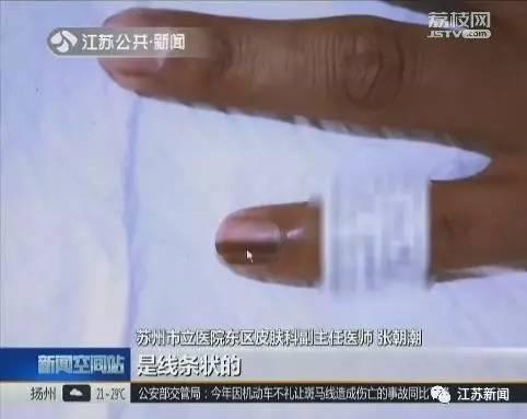 儿童指甲下黑线-甲母痣的治疗_痣_痣