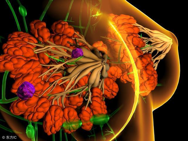 乳腺纖維瘤鈣化圖片