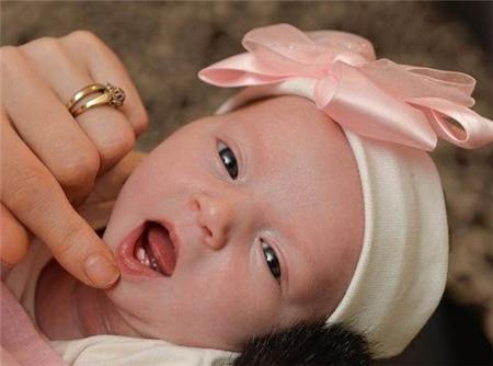 婴儿长马牙子图片