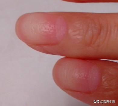 指甲横纹是怎么回事啊?