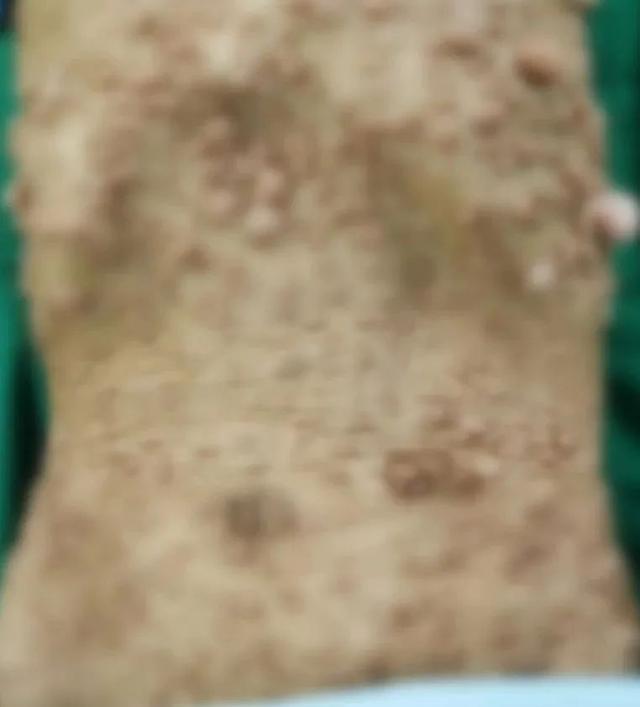 皮肤长肉疙瘩图片图库