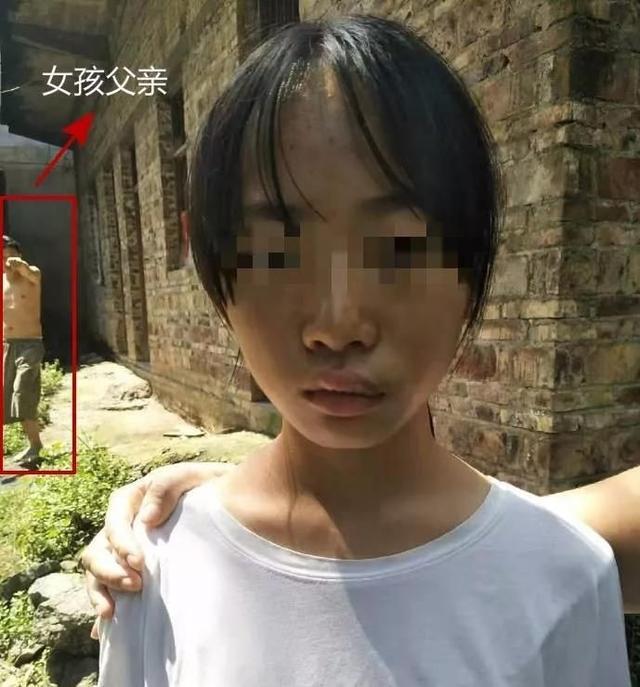 12岁女儿遭亲生父亲家暴