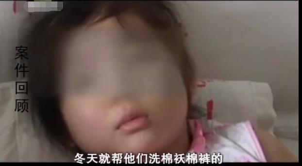 愤怒!女孩遭亲生父亲和继母多次家暴,被打的遍体鳞伤
