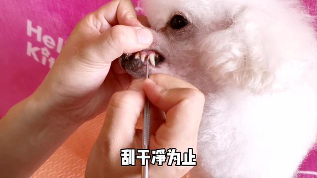 牙结石图片