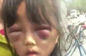 """女孩遭继母打骂成""""熊猫眼"""" 警方称女孩已被送医救治,打人者正在接受审讯"""