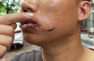 毁容啊!哈尔滨男子被狗撕咬,面部缝40多针,第二天谈赔偿时狗没影了……