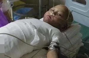 """4岁女童全身严重烧伤,崩溃痛哭:""""哥哥为什么要拿火烧我"""""""