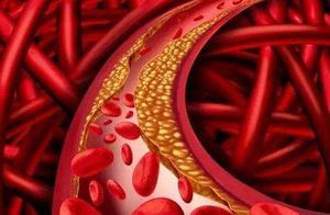 """""""血管垃圾""""是谣言还是真谛?保护血管要注意的,是少吃这些食物"""