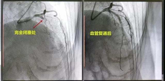 突发心梗,一半心肌缺血,树兰胸痛中心紧急介入