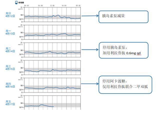 借力动态血糖图谱分析,优化患者血糖管理