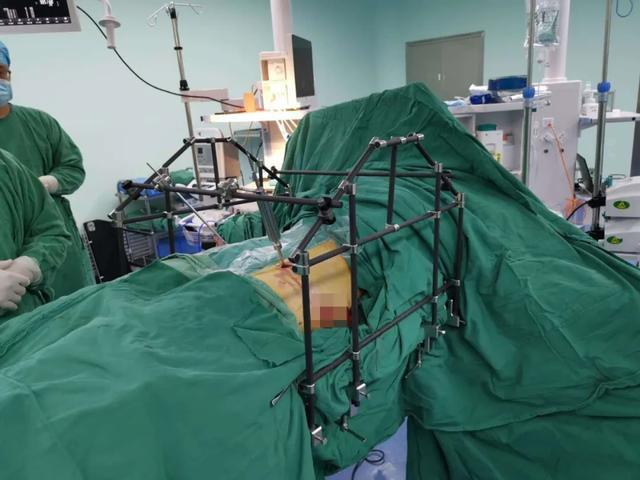巧夺天工!潍坊市人民医院应用 STARR 架微创精准治疗复杂骨盆骨折