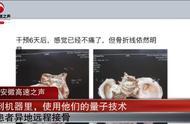 量子接骨技术?诈骗公司称拍照能异地远程接骨,有投资者被骗27万
